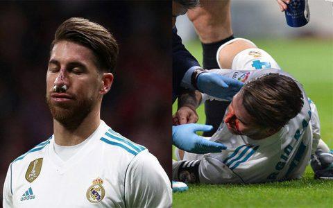 """Chấn thương mũi nghiêm trọng, """"chiến binh"""" Ramos vẫn từ chối phẫu thuật để thi đấu, tuyên bố """"sẵn sàng đổ màu nghìn lần vì Real"""""""