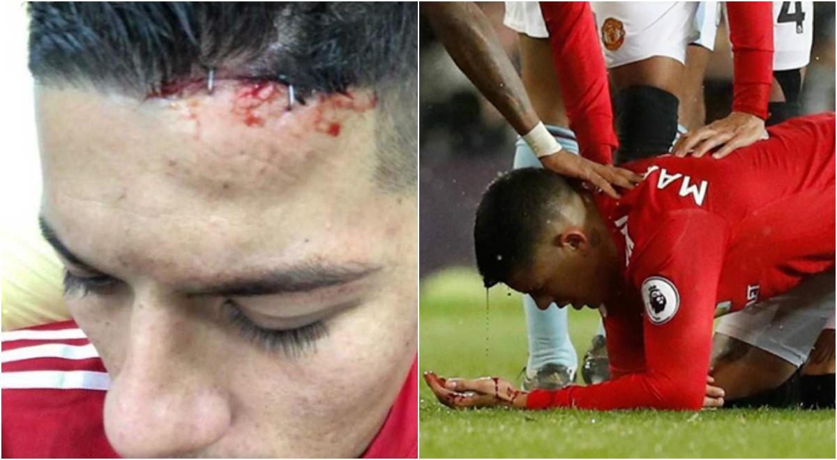 Ghê rợn với hình ảnh kẹp ghim vô cùng KINH DỊ từ chấn thương đầu của Marcos Rojo