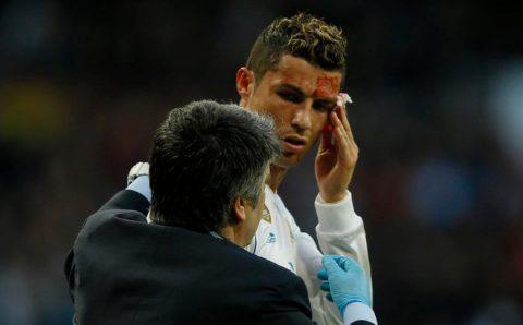 Ronaldo đổ máu tìm lại niềm kiêu hãnh, Real thắng hơn cả một set tennis