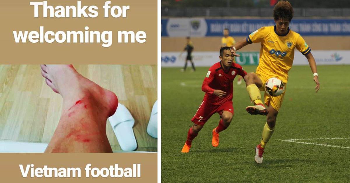 Đá đúng 1 trận V.League, trai đẹp nhất lịch sử Thanh Hóa nói 1 câu làm cả VN xấu hổ cùng cực