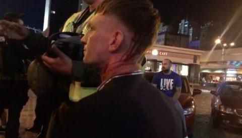 NÓNG: CĐV Liverpool bị tấn công chảy máu đầu tại Kiev