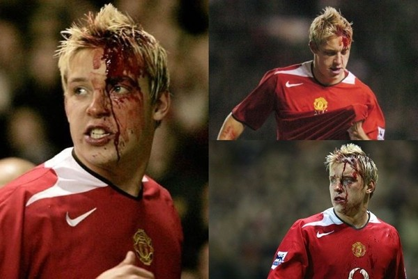 13 chấn thương kinh hoàng nhất lịch sử bóng đá: Phải chăng thảm họa này khiến Torres sa sút đến như vậy